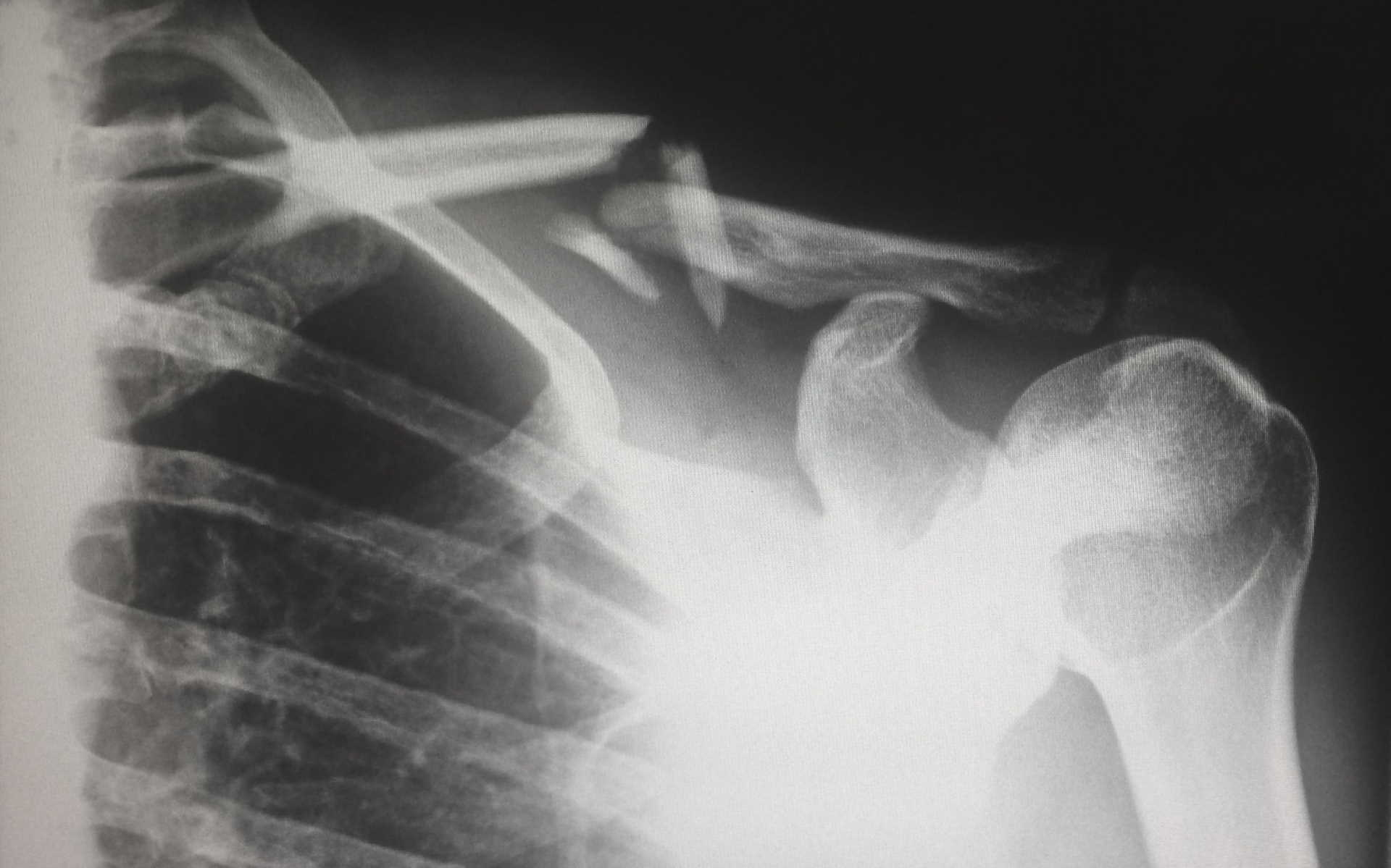Krankengymnastik nach einem Knochenbruch • Private